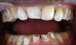 Teeth damaged by bruxism