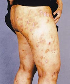 What Does Scabies Look Like On the Skin