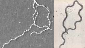 Comparison of lyme and syphilis spirochetes